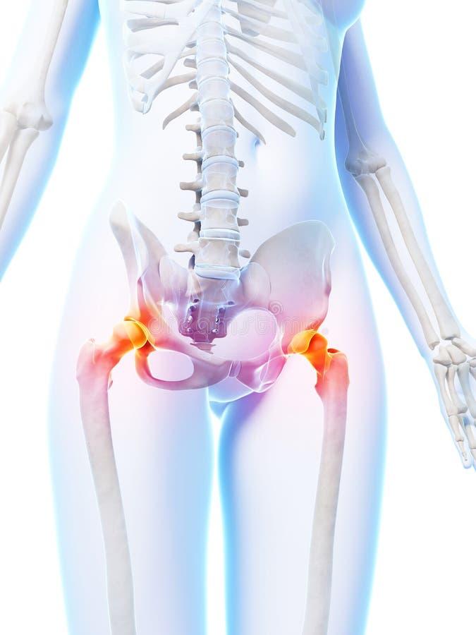 Articulations de la hanche accentuées illustration stock
