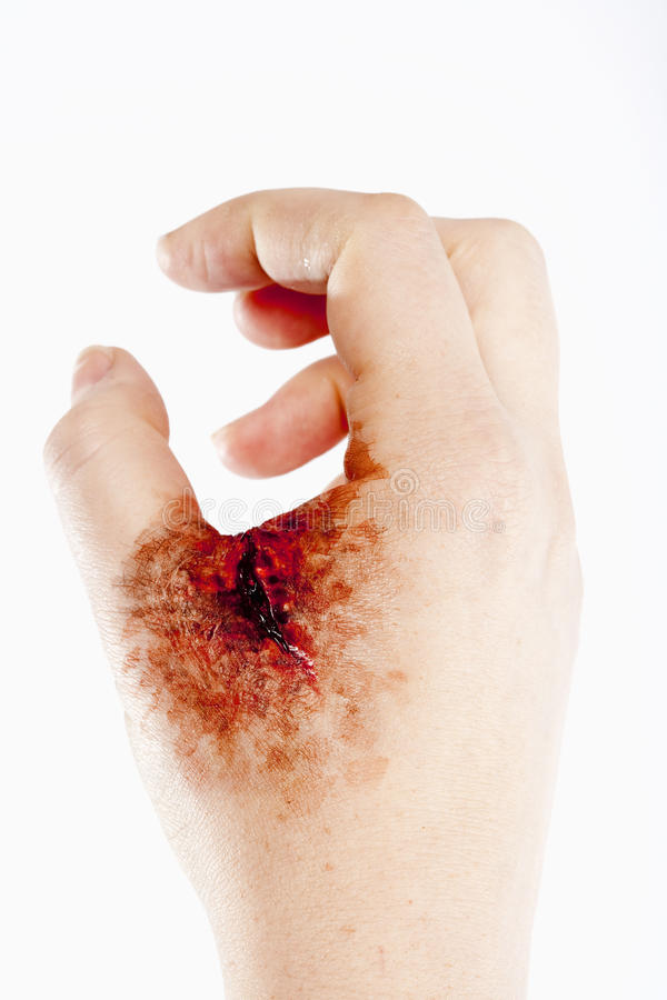 Artificial Blood Wound on Human Hand. Isolated on White stock photography