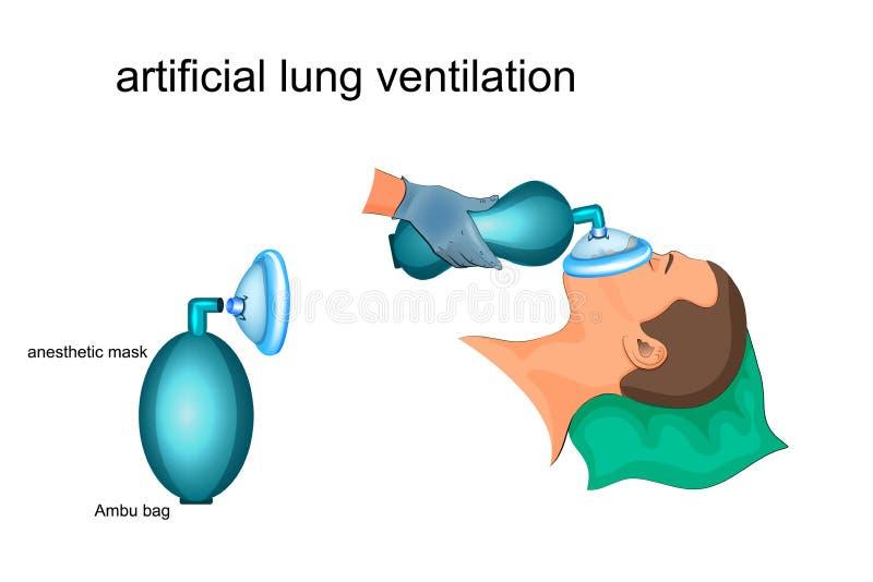 Artificial lung ventilation. Vector illustration of artificial ventilation by Ambu bag and masks royalty free illustration