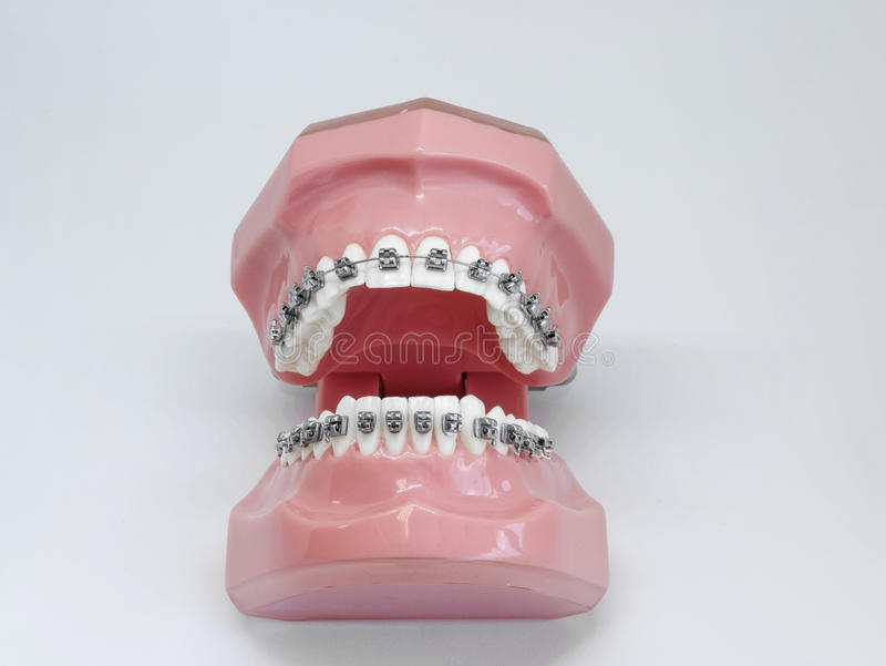 Artificial model of human jaw with wire colorful braces attached royalty free stock photos