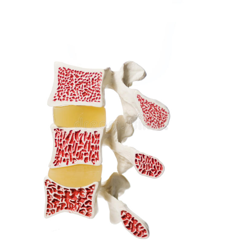 Artificial model of osteoporosis royalty free stock photo
