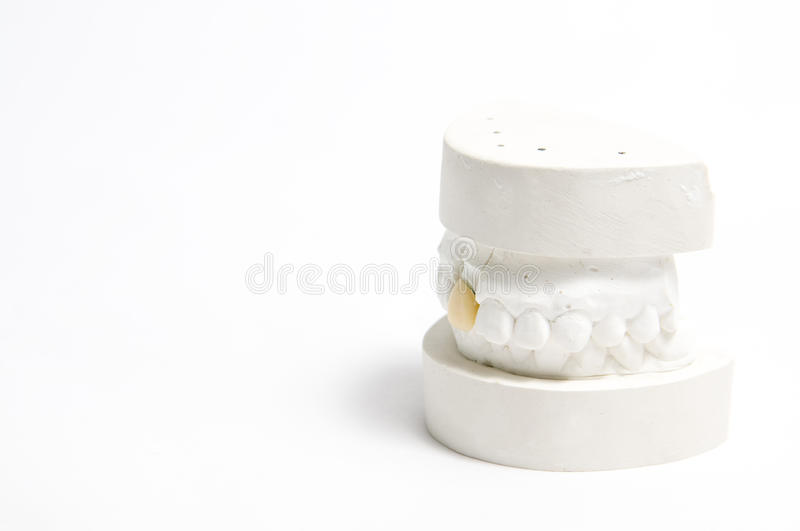 The artificial tooth