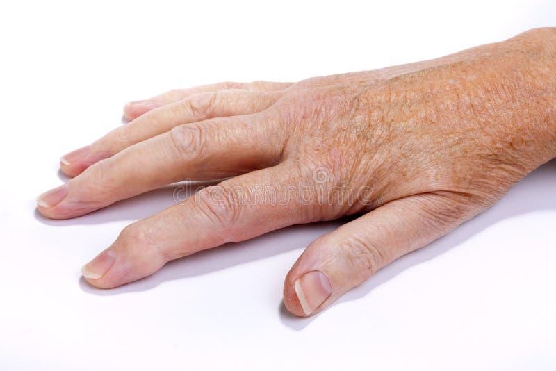 artretyczna ręka fotografia stock