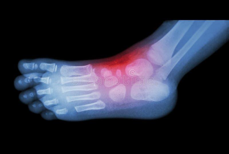 Artretyzm i uraz przy kostką: ekranowy promieniowanie rentgenowskie dziecko stopa (boczny widok lateral) () obraz royalty free