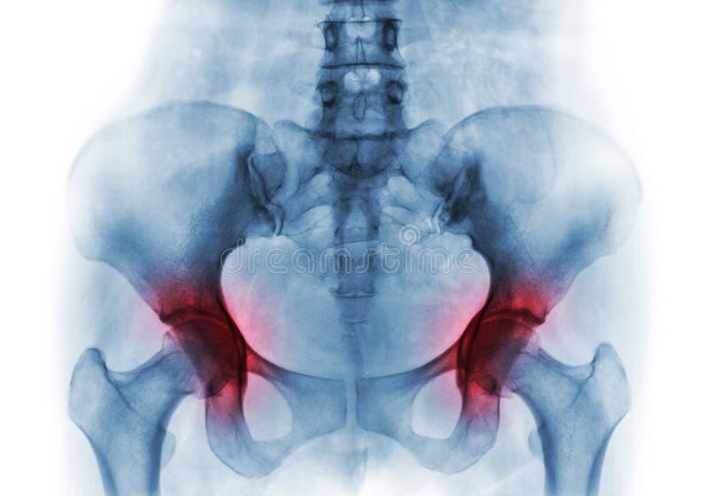 Artretyzm oba biodro Ekranowy promieniowanie rentgenowskie ludzki pelvis fotografia royalty free