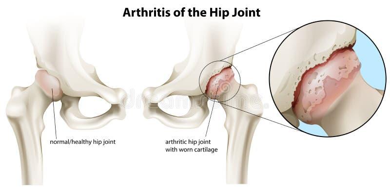 Artrit av höftleden stock illustrationer