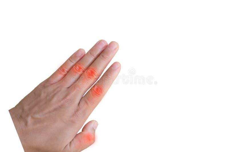 Artrite ascendente próxima da mão no fundo branco fotografia de stock