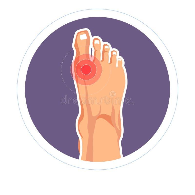 Artrite da dor do dedo do pé de ferimento do pé ou dano comum do skeletone ilustração royalty free