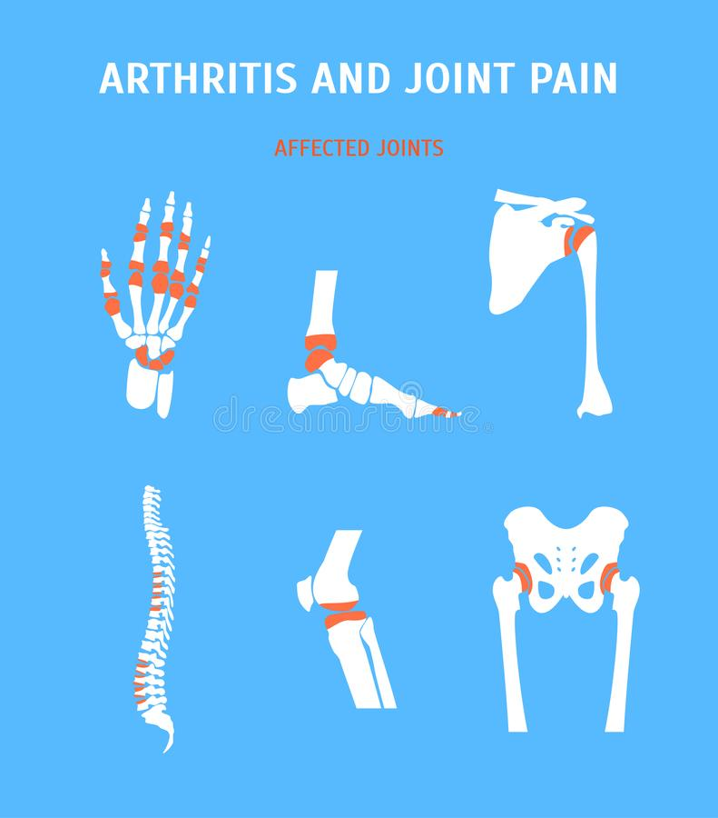Artrite del fumetto ed insieme di dolori articolari Vettore royalty illustrazione gratis