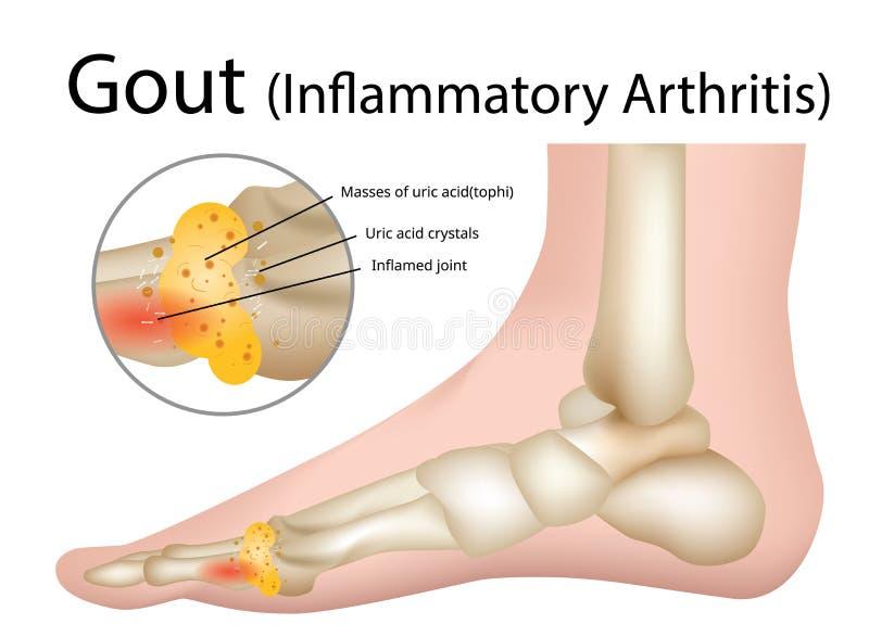 Artrite infiammatoria di gotta, illustrazione - vettore illustrazione di stock