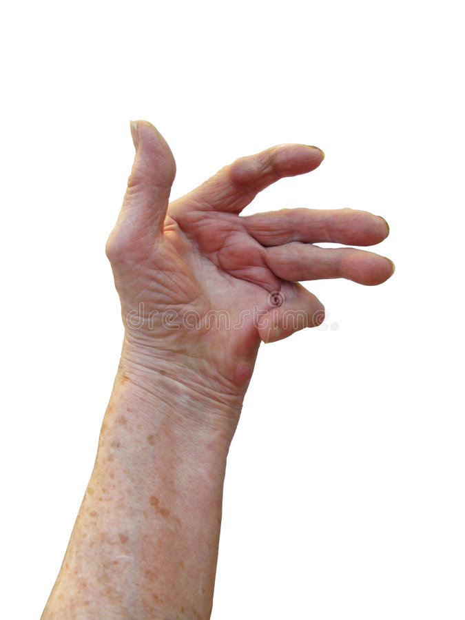 Artrite reumatoide fotografie stock libere da diritti