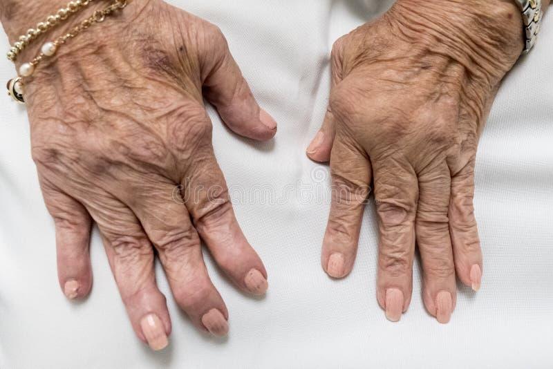Artrite reumatoide, mãos superiores fotos de stock