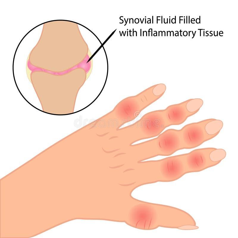 Artrite reumatoide na ilustração médica do vetor dos dedos ilustração stock