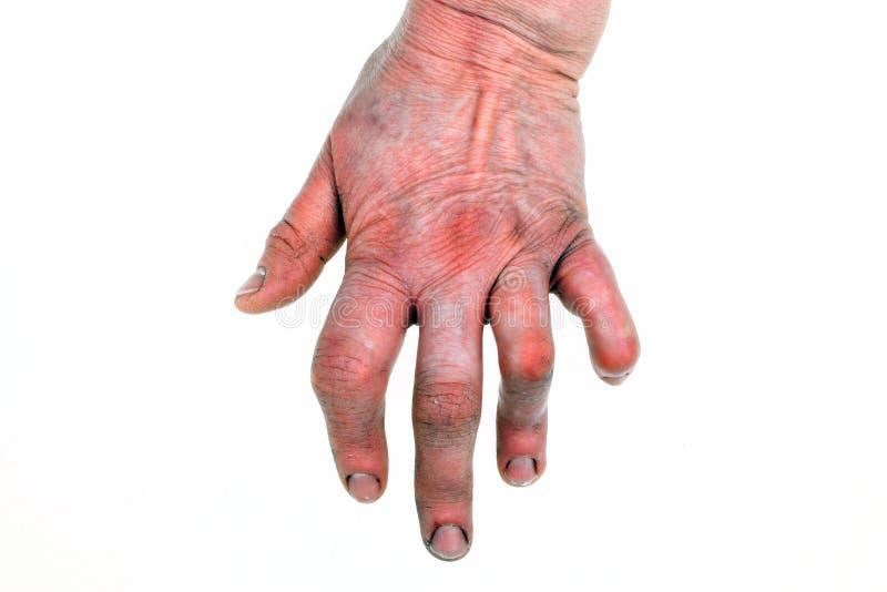 Artrite Rheumatoid imagens de stock