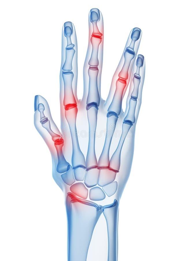 Artritis stock de ilustración