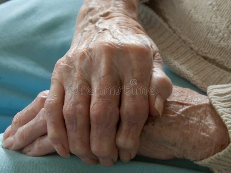 Artritis de Rheumtoid imágenes de archivo libres de regalías