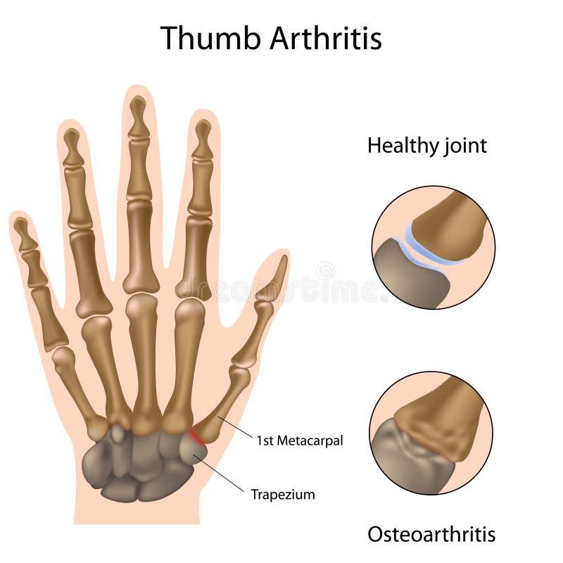 Artritis del pulgar stock de ilustración