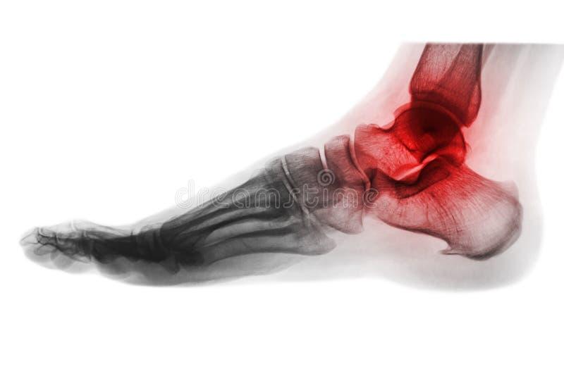 Artritis del tobillo RADIOGRAFÍA DEL PIE visión lateral Estilo invertido del color fotos de archivo