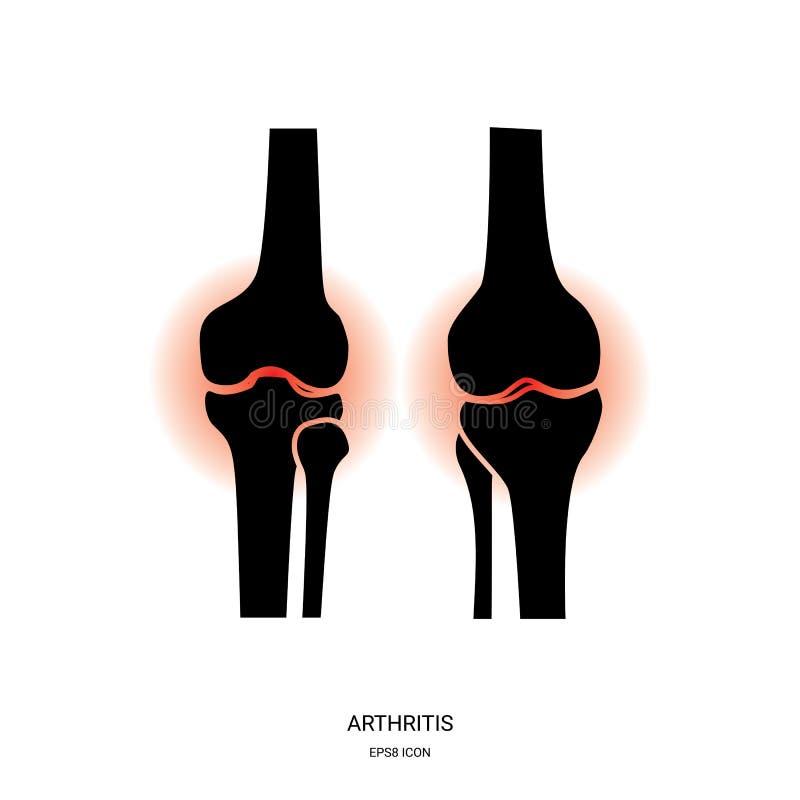 Artritis en Knie Gezamenlijk Pictogram stock illustratie