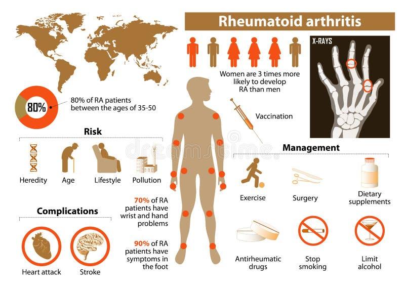 Artritis reumatoide ilustración del vector