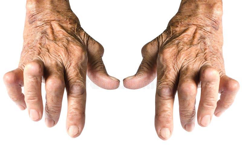 Artritis reumatoide fotos de archivo