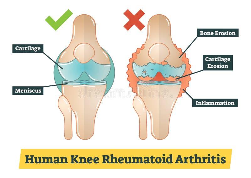 Artritis reumatoide de la rodilla humana, ejemplo del diagrama stock de ilustración