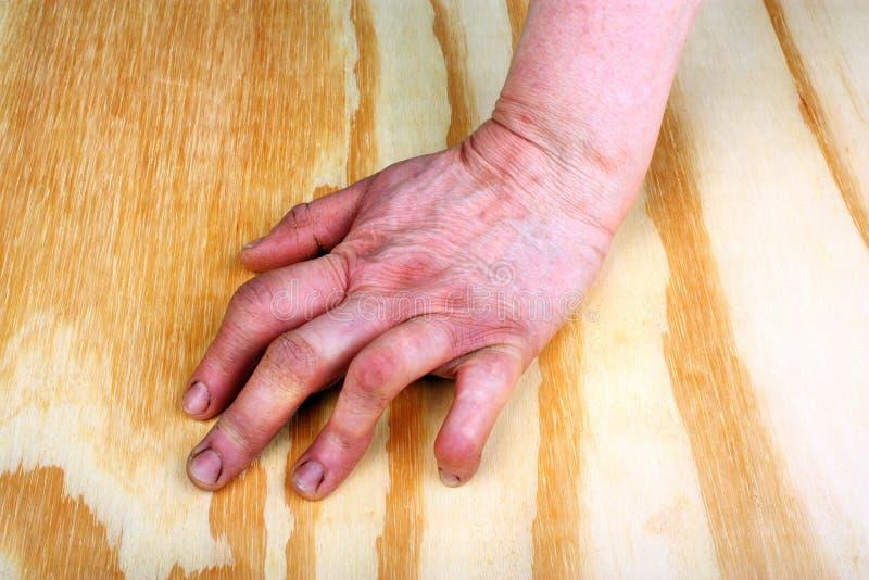 Artritis van de hand stock afbeeldingen