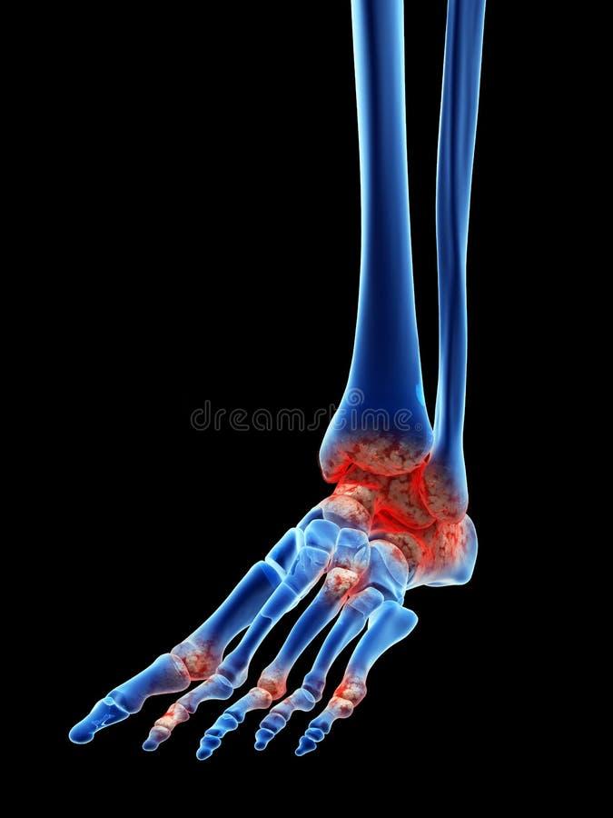 Artrose no pé ilustração royalty free