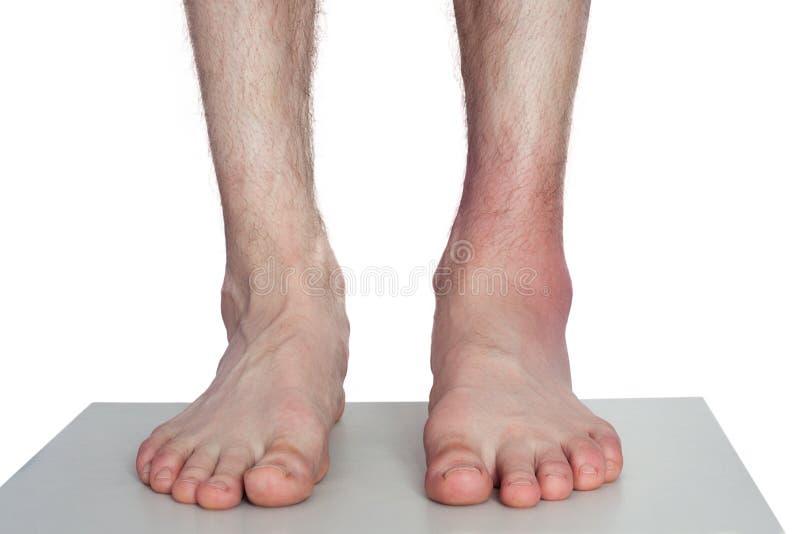 Arts Bandaging Man Ankle royalty-vrije stock foto