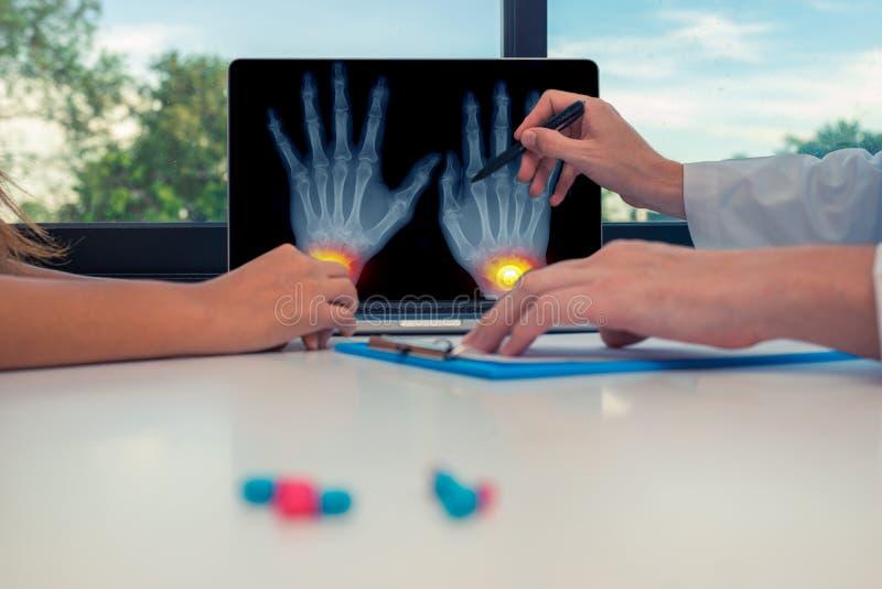 Arts die een r?ntgenstraal van hand met pijnen op de polsen op laptop tonen aan een vrouwenpati?nt Pillen op het bureau Osteoartr stock foto
