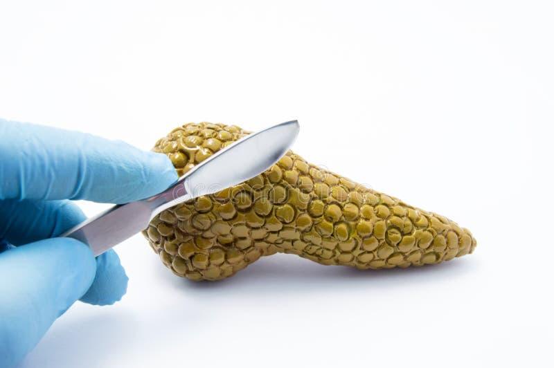 Arts die met scalpelcijfer van alvleesklierklier op witte achtergrond voorbereidingen treffen te snijden Conceptenfoto van medisc stock afbeelding