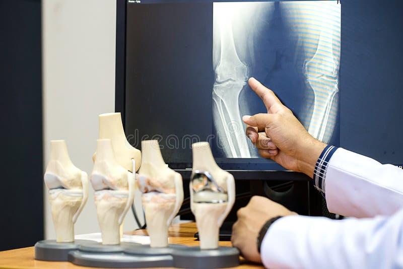 Arts die op het punt van het knieprobleem op x-ray film richten x-ray film toont skeletknie op film royalty-vrije stock afbeelding
