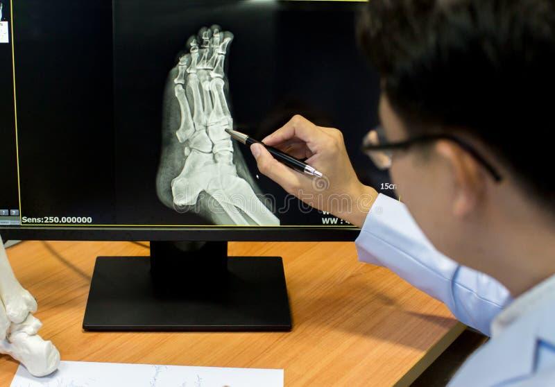 Arts die op het punt van het voetprobleem op x-ray film richten x-ray film toont skeletvoet op film stock foto