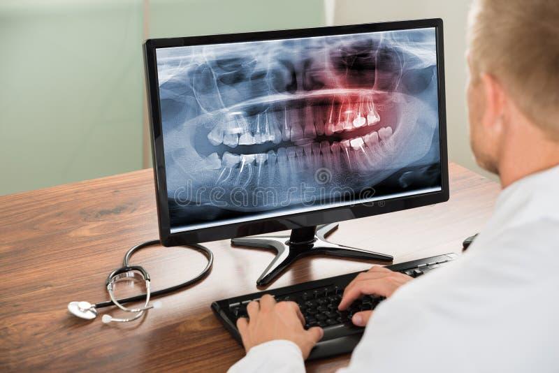 Arts die tandenröntgenstraal bekijken op computer royalty-vrije stock foto