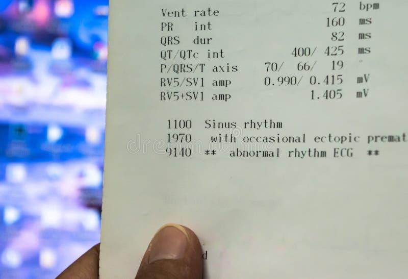 Arts het letten op het document die van de electrocardiogramanalyse abnormale ECG van de patiënten in het ziekenhuis tonen royalty-vrije stock foto's