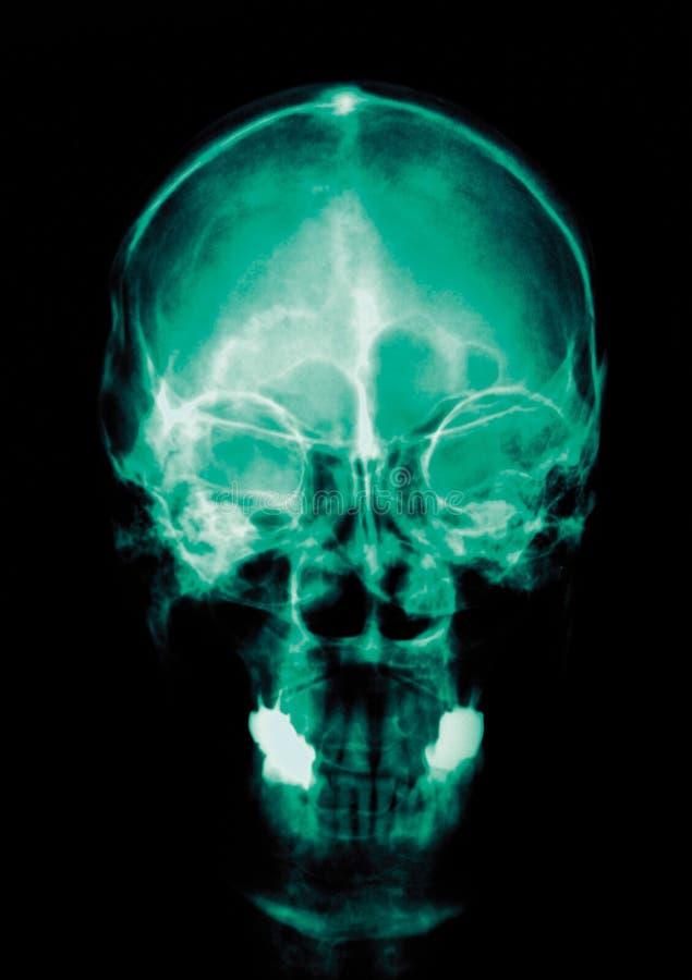 artykuł medyczny fotografia stock