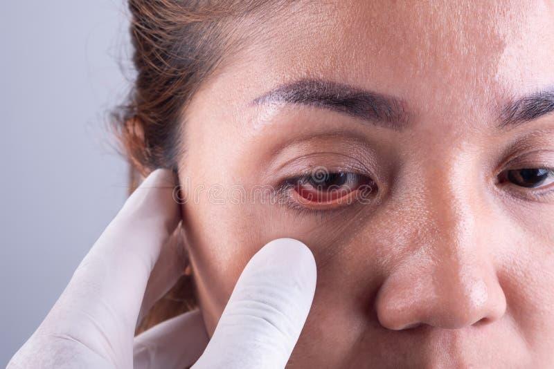 As mãos de um oftalmologista e de um paciente asiático novo visita fotografia de stock royalty free