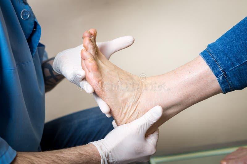 As mãos de um ortopedista do doutor do homem novo conduzem diagnósticos, teste do pé de pé de uma mulher, para a fabricação de in fotografia de stock