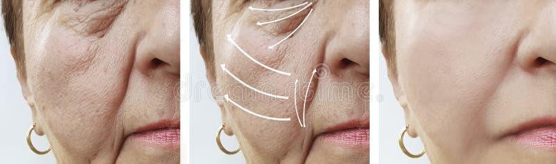 As pessoas idosas da mulher enfrentam o rejuvenescimento antes e depois dos procedimentos, seta da cosmetologia dos enrugamentos  imagem de stock royalty free