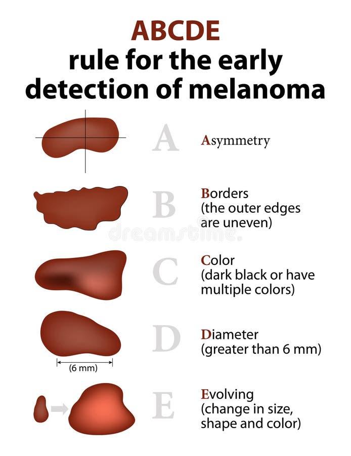 As regras de ABCD de câncer de pele ilustração royalty free