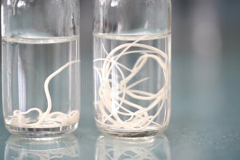 Ascariasis is a disease caused by the parasitic roundworm in fix. Ative solution for education stock photography