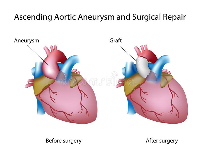 Ascending aortic aneurysm. And open surgery repair, eps8 stock illustration