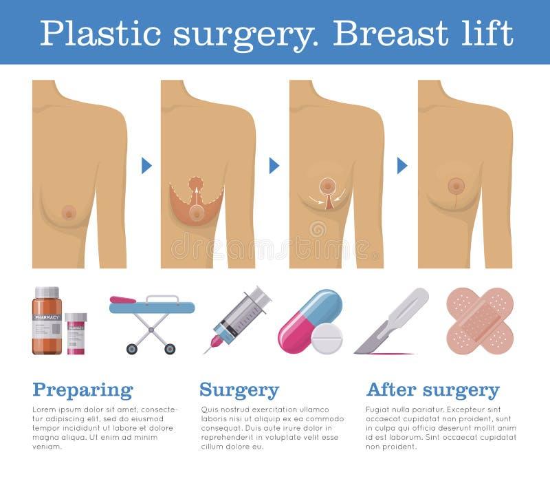Ascenseur de sein de chirurgie plastique illustration libre de droits