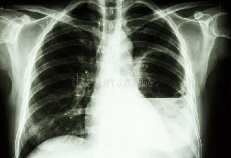 Ascesso del polmone immagine stock libera da diritti