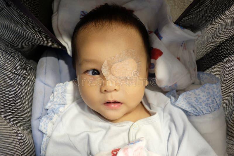 Asia Infant est un strabisme photos libres de droits