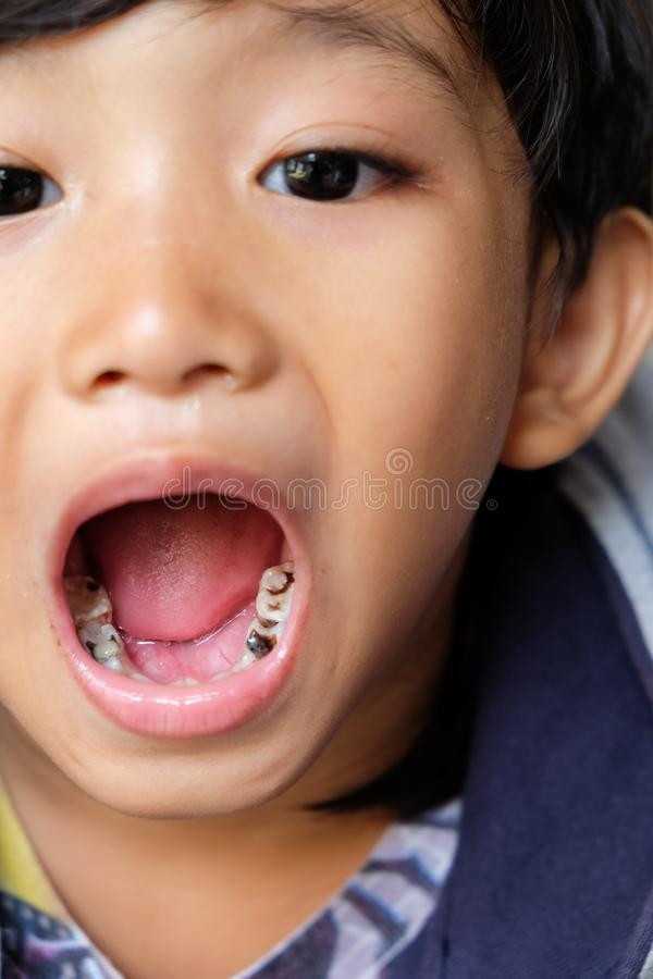 Asian Boy Showing HIs Tooth Decay royalty free stock photo