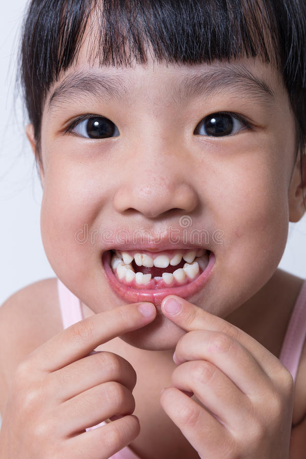 Asian Chinese little girl showing her missing tooth. In isolated white background stock photos