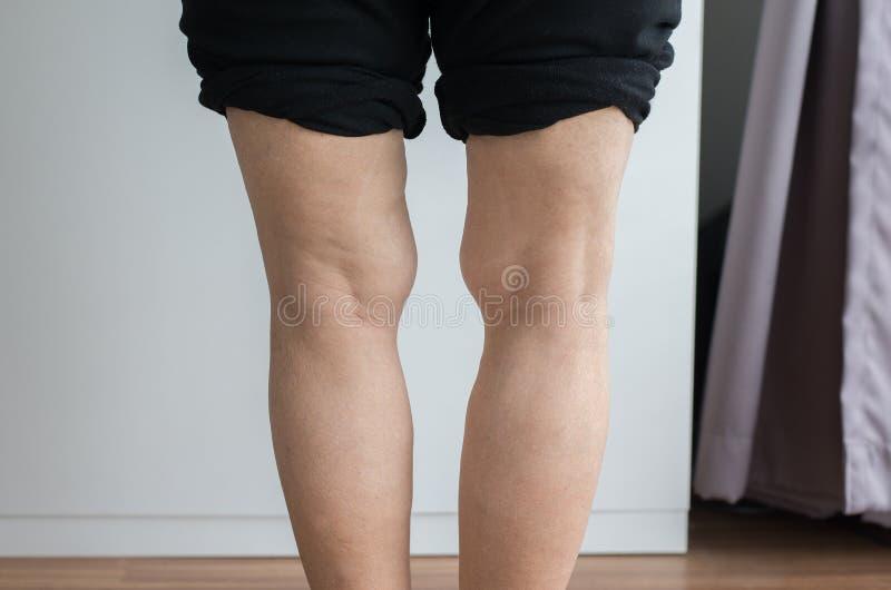 Asian elderly woman leg bandy-legged shape of the body royalty free stock image