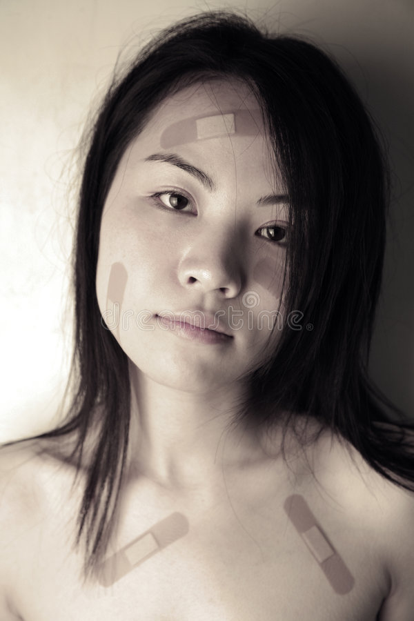 Download Asian girl with bandages stock photo. Image of domestic - 5746482