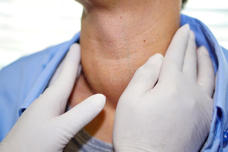 Asian lady woman patient have abnormal enlargement of thyroid gland Hyperthyroidism overactive thyroid at the throat. Healthy strong medical concept stock images